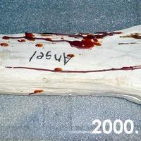 2000.158.010a.jpg